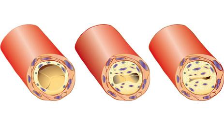 Arginine Improves Erectile Function Naturally