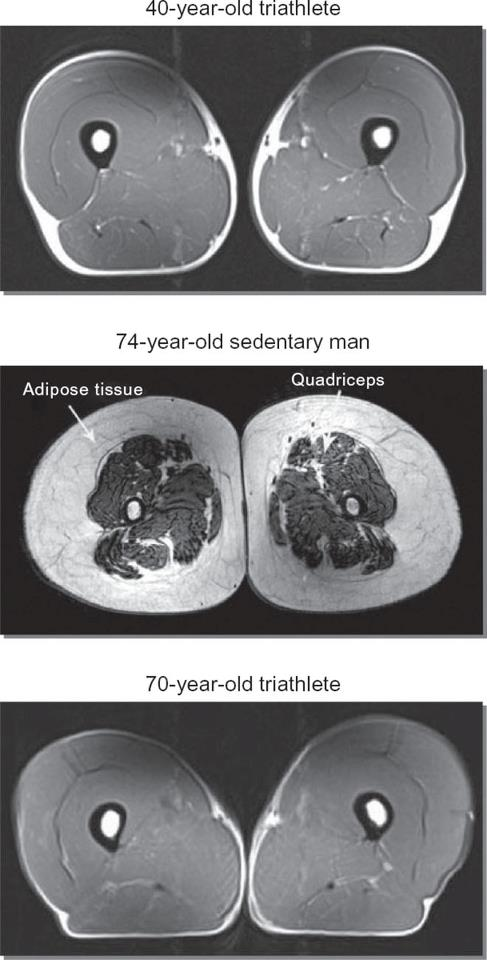 Erection and Age